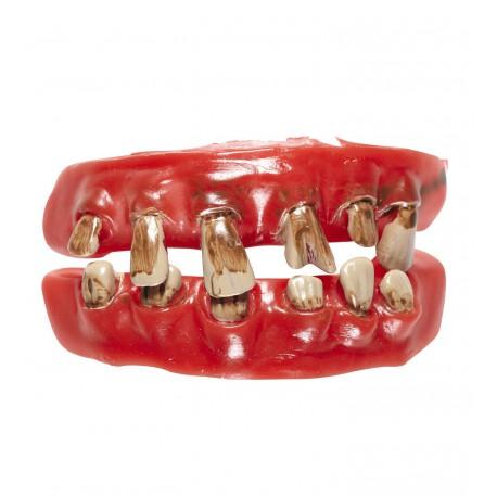 Dentadura Postiza Podrida